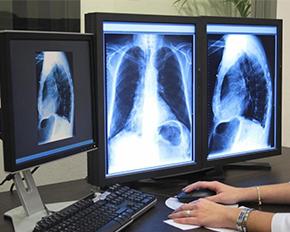 Утверждены новые профессиональные стандарты врача-рентгенолога